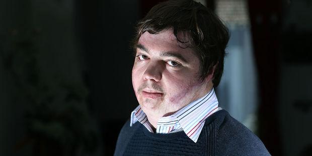 Harcelement-scolaire-8-ans-apres-avoir-tente-de-s-immoler-par-le-feu-Jonathan-Destin-temoigne